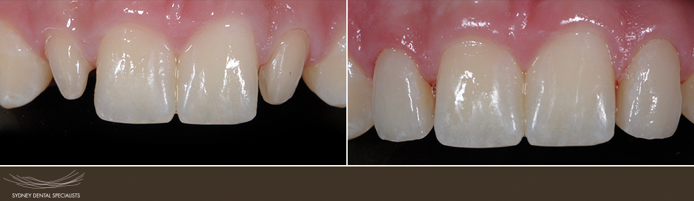 sydneydentalspecialists-beforeandafters-agnewjohn